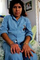 Margarita Galan was terminated after being injured at a pork plant. Her hand was permanently disabled.  © 2006 David Bacon